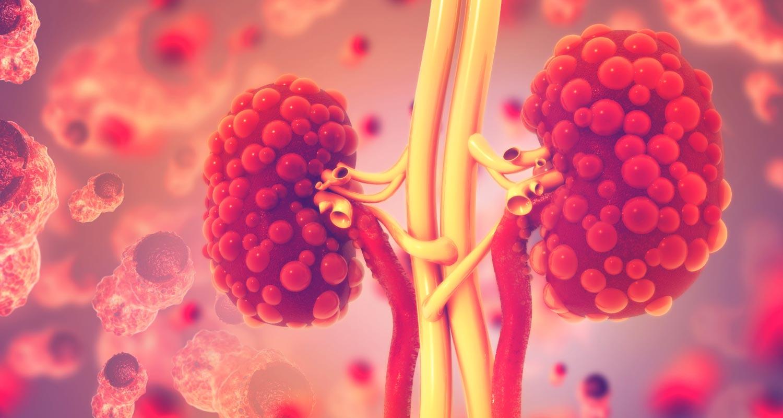 Kidney toxicity
